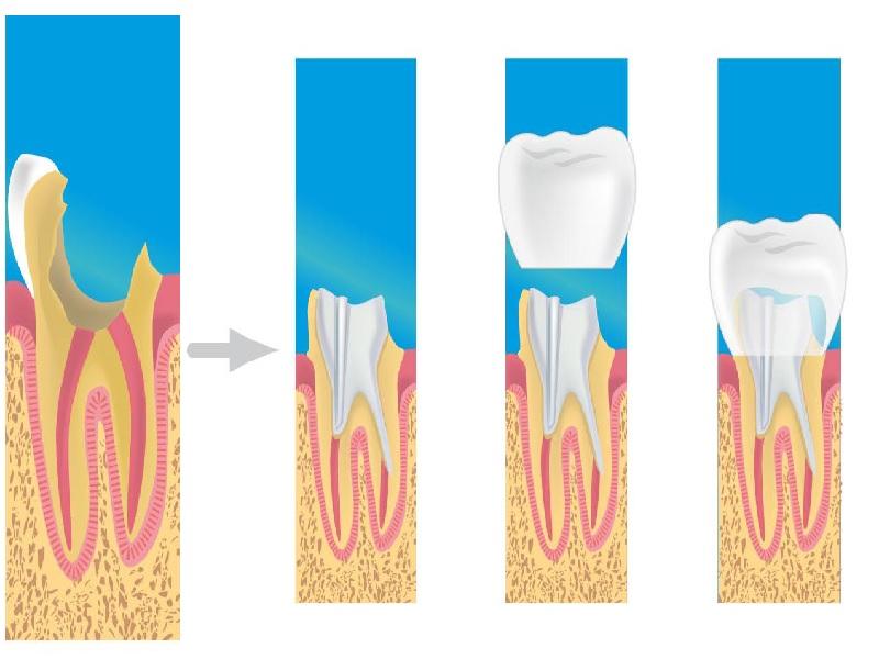 تاج الأسنان 2 تركيا