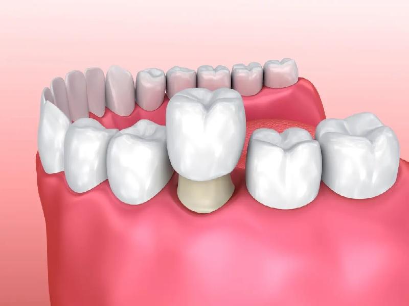 تاج الأسنان 0 تركيا