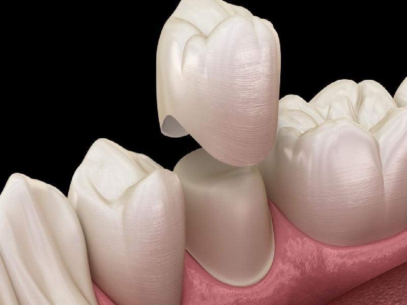 تاج الأسنان 1 تركيا