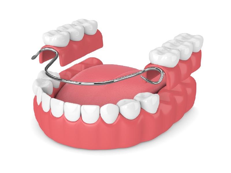 зубной протез 0 индейка