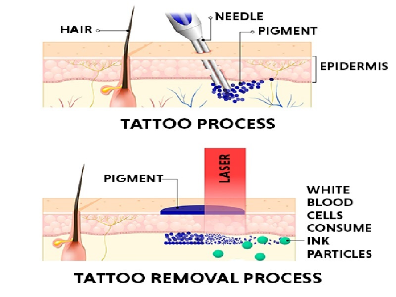 Laser tattoo removal 0