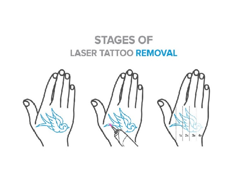 Laser tattoo removal 1