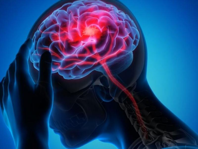 Лечение эпилепсии  Турция