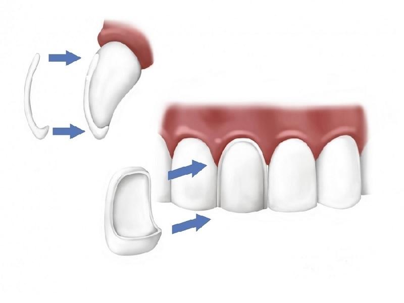 Facette Dentaire 4 Turquie