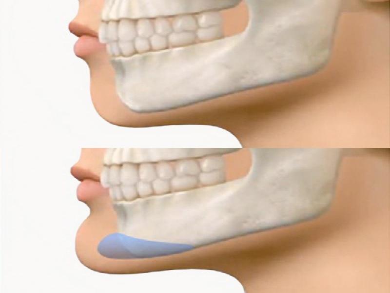 Genioplasty  1