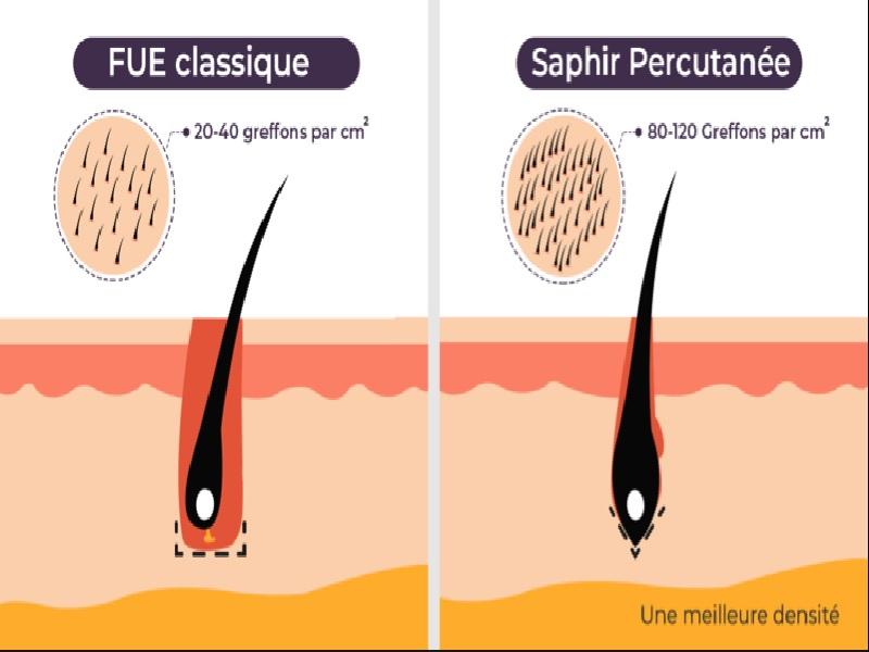 Пересадка волос 2 индейка