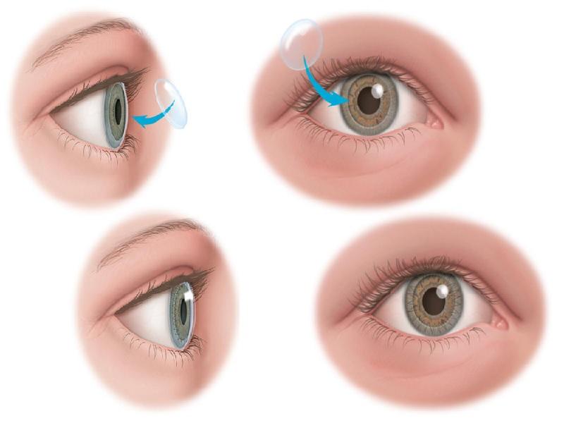 Greffe de cornée 1