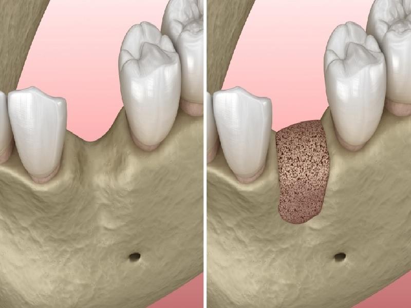 Костный трансплантат 3 индейка