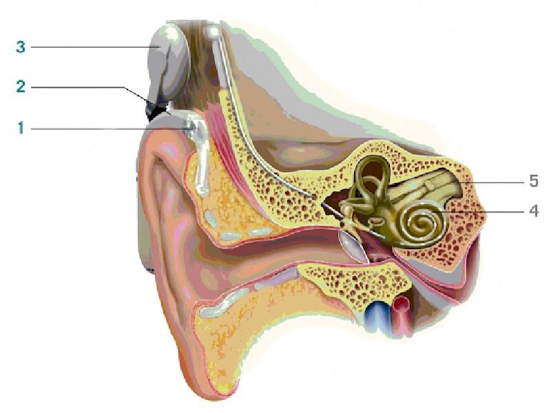 Cochlear Implant 2 Turkey