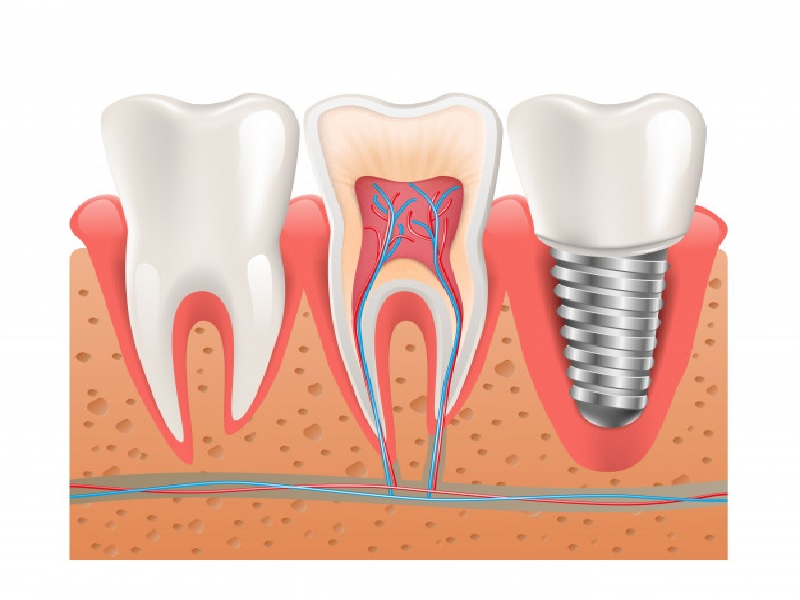 Implant Dentaire 1