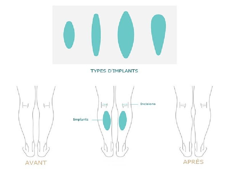 Calf implants  Turkey