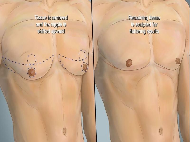 Implants pectoraux 6 Turquie