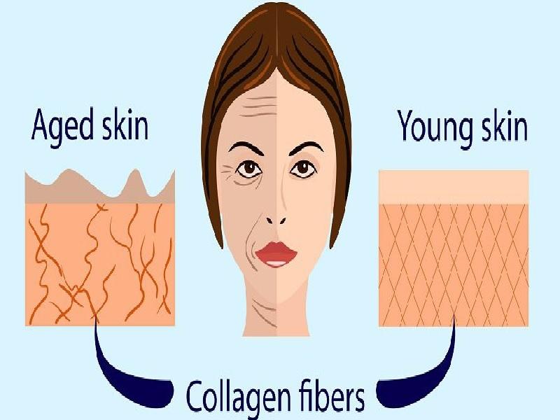 حقن الكولاجين 0