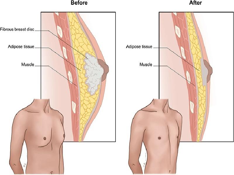 La Gynécomastie (avec liposuccion) 3 Turquie