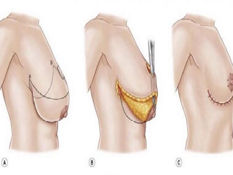 رفع الثدي 2