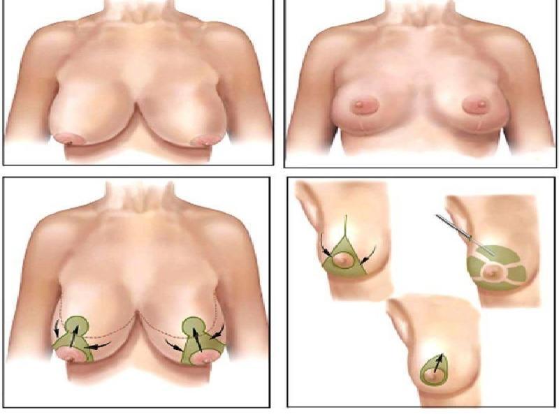 رفع الثدي 1