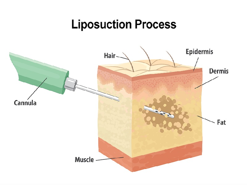 Laser Liposuction 0