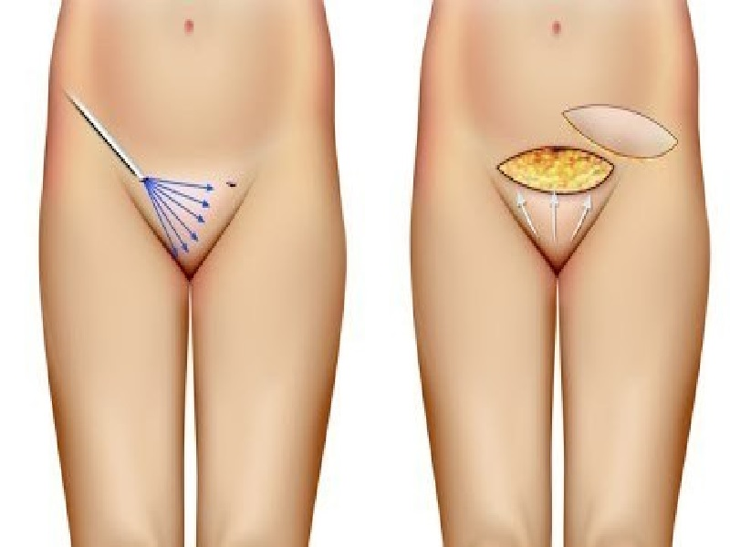Pubic Liposuction In Turkey Reviews Price From 1200
