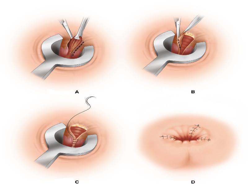 Операция геморрой 3 индейка