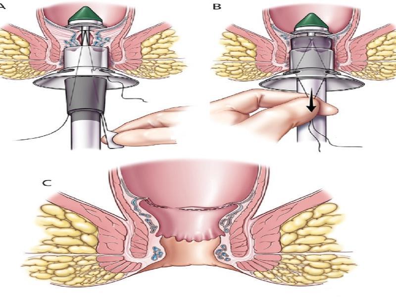 Операция геморрой 2 индейка
