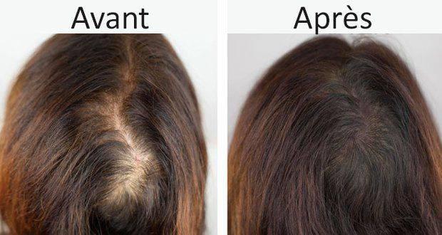 علاج تساقط الشعر تركيا