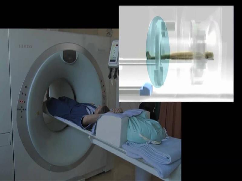 Pet-Scan (Pet-CT) 3