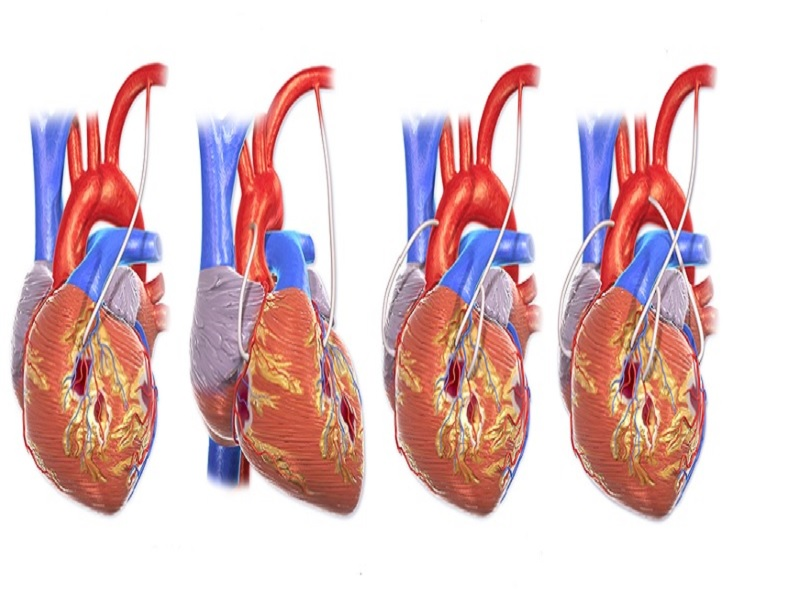 Аортокоронарное шунтирование (PAC) 1 индейка
