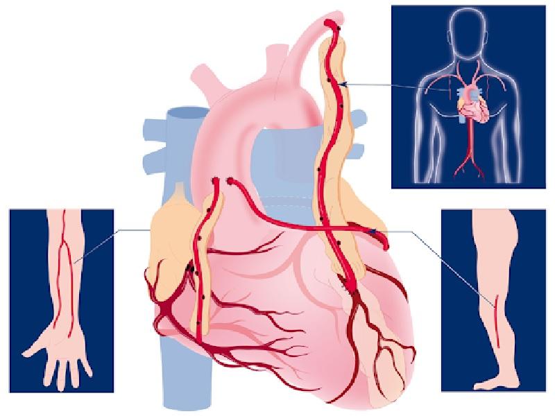 Аортокоронарное шунтирование (PAC) 2 индейка