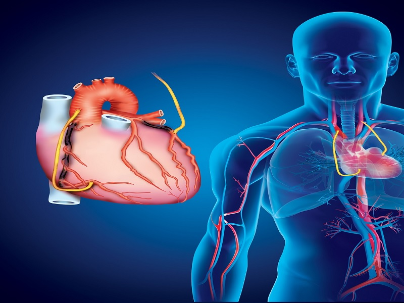 Аортокоронарное шунтирование (PAC) 3 индейка