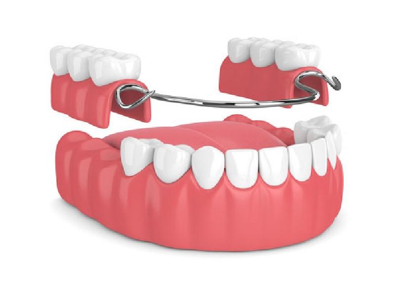 Зубной протез 3 индейка