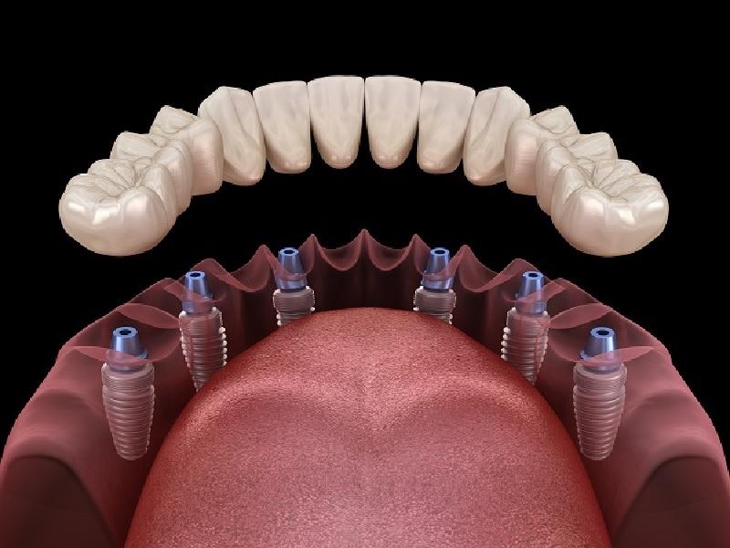 Зубной протез 2 индейка
