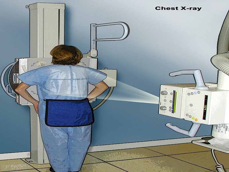 Chest X-Ray  0