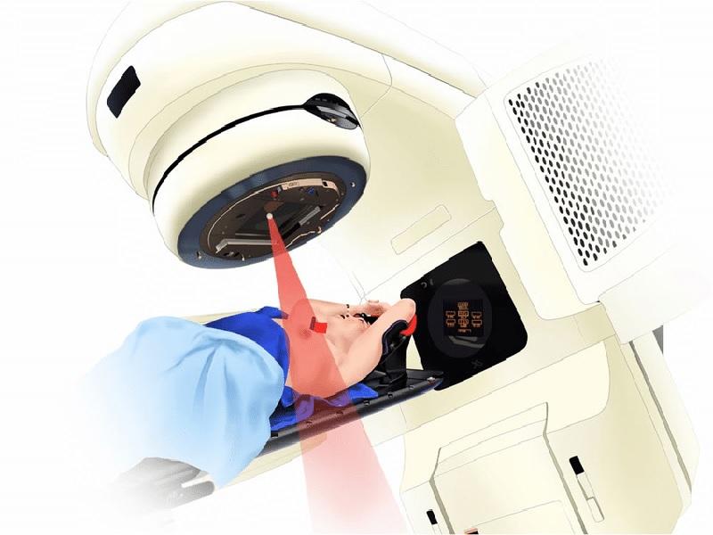 Radiothérapie 0