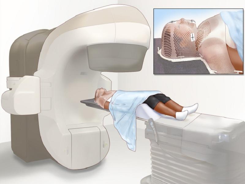Radiothérapie 2