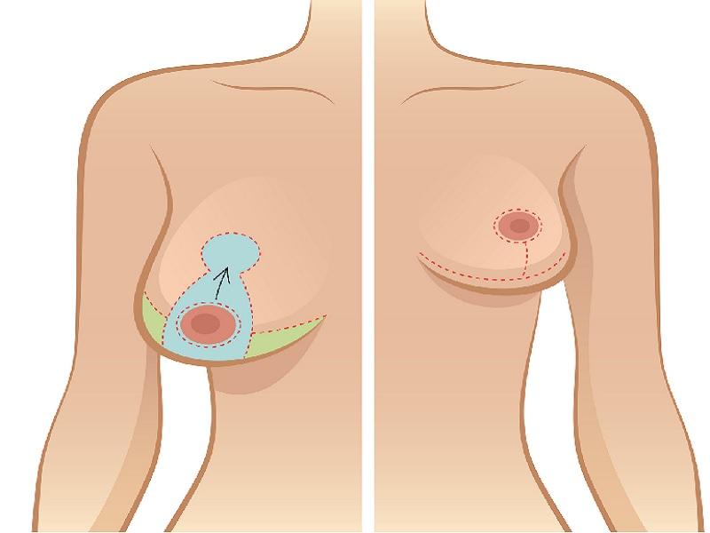 Уменьшение груди 0 индейка
