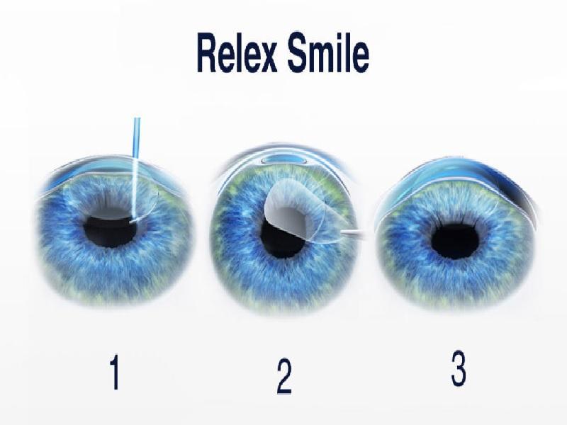 Relex Smile 0