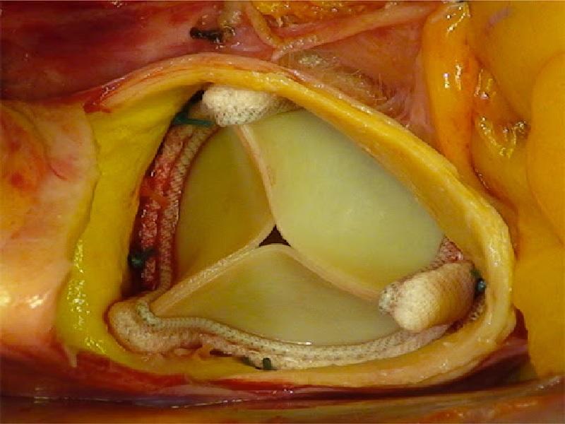 Замена сердечных клапанов 3 индейка
