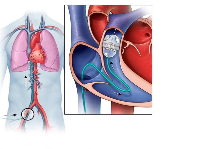 Замена сердечных клапанов 0 индейка