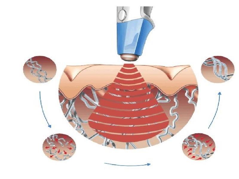 Лазерное лечение угрей 1 индейка
