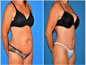 Info, prices & total cost   Tummy Tuck