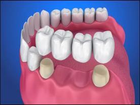 Стоматологический мост