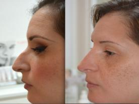 Info, prices & total cost   Nose tip surgery