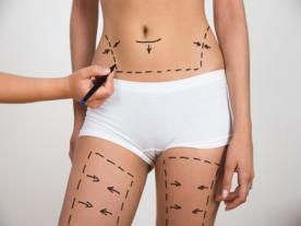 Info, prices & total cost   360 ° liposuction