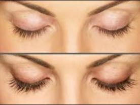 Info, prices & total cost   Eyelash transplant