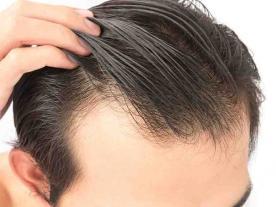 Infos et prix   Greffe de Cheveux