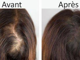 المعلومات والأسعار   العلاج الهرموني لفقدان الشعر