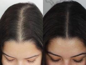 Информация, цены и общая стоимость  PRP для выпадения волос