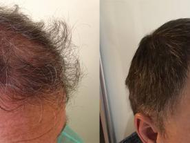 Информация, цены и общая стоимость  Трансплантация волос