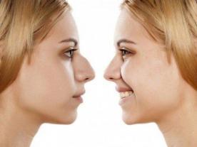 Информация, цены и общая стоимость  Ринопластике (пластике носа)