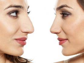Info, prices & total cost   Rhinoplasty (with graft)